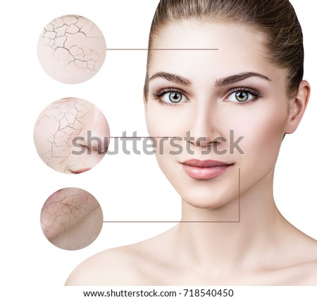 Zoom circle shows facial skin before moistening. #718540450
