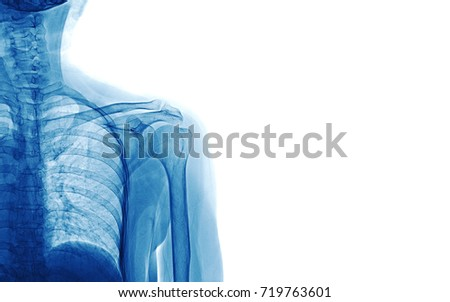 Xray image of shoulder isolated on white background, space for your message and idea medical concept #719763601