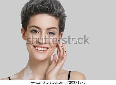 Vitiligo woman beauty portrait. Studio shot. Gray background. #720391573