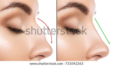 Comparison of Female nose after plastic surgery #731042263