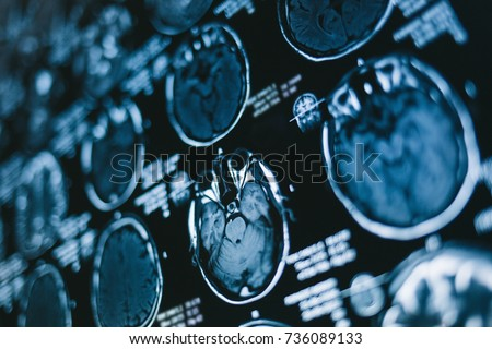 Magnetic resonance scan of the brain. MRI head scan. Medicine, science Royalty-Free Stock Photo #736089133