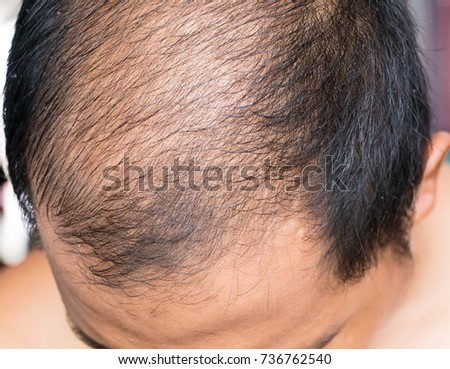 a man baldness,Middle-aged man concerned with hair loss #736762540