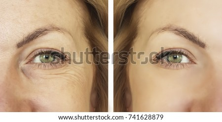 wrinkles face before and after Royalty-Free Stock Photo #741628879