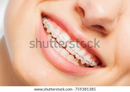 Happy smile of young woman with dental braces #759381385
