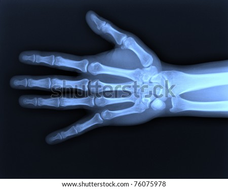 X-ray hand / Many others X-ray images in my portfolio. Royalty-Free Stock Photo #76075978