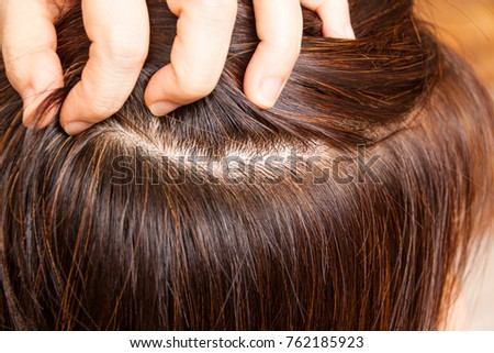 Close-up on dyed hair roots of woman.  No more grays hairs. #762185923