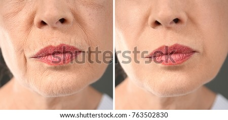 Senior woman before and after biorevitalization procedure, closeup Royalty-Free Stock Photo #763502830