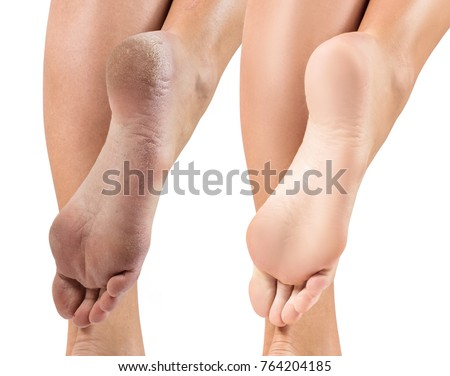 Feet with dry skin before and after treatment. Royalty-Free Stock Photo #764204185