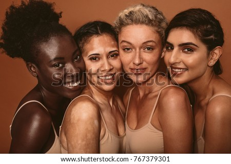 Portrait of four young women with different skin types. Diverse group of females standing together and looking at camera. Royalty-Free Stock Photo #767379301