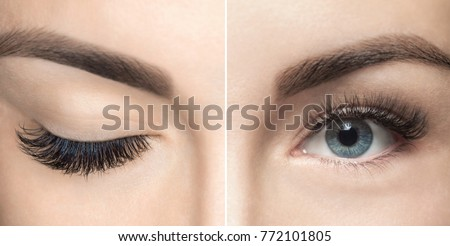 Eyelash removal procedure close up. Beautiful Woman with long lashes in a beauty salon. Eyelash extension. Royalty-Free Stock Photo #772101805