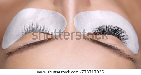 Eyelash removal procedure close up. Beautiful Woman with long lashes in a beauty salon. Eyelash extension. Royalty-Free Stock Photo #773717035