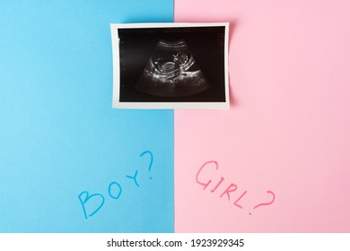 Image of baby in mother womb during ultrasound. Words BOY, GIRL and question mark on pink and blue background.