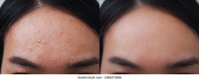 Image before and after acne pimple treatment on the face of young Asian woman. Problem skincare and beauty concept.