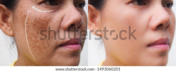 Image Before After Anti Aging Dark Stock Photo Edit Now 1493060201