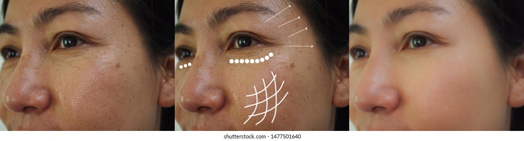 Image before and after anti-aging and face lift rejuvenation treatment of asian Woman. Problem skincare and health concept.