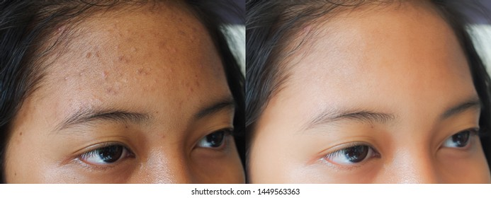Image before and after dark spot acne treatment on the face of young Asian woman. Problem skincare and beauty concept.
