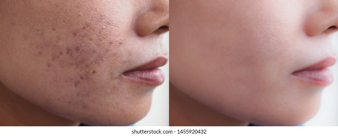Image before and after dark spot scar acne and melasma pigmentation skin facial treatment on face asian woman. Problem skincare and beauty concept.