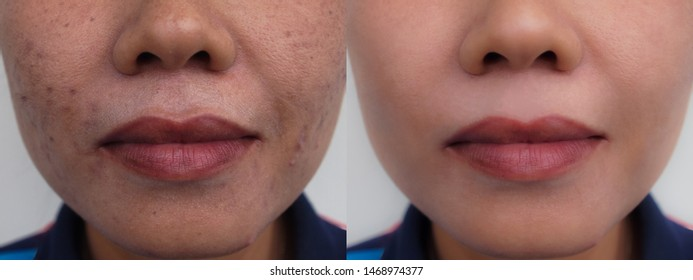 Image before and after dark spot scar acne melasma pigmentation skin facial treatment on face asian woman. Problem skincare and health concept.