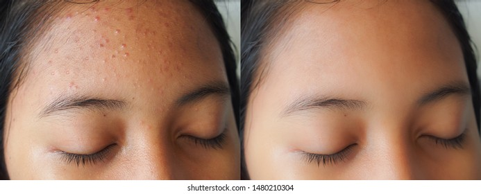 Image before and after dark spot scar acne treatment on forehead of young Asian woman face. Problem skincare and beauty concept.