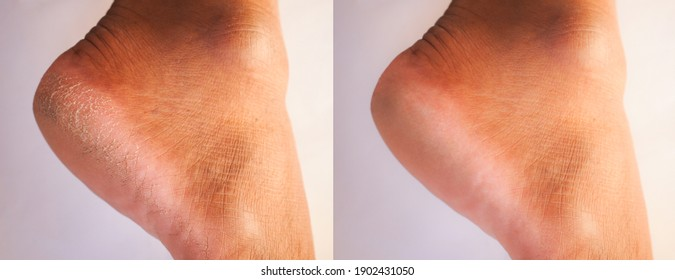 Image before and after feet dry skin cracked heel  treatment.
