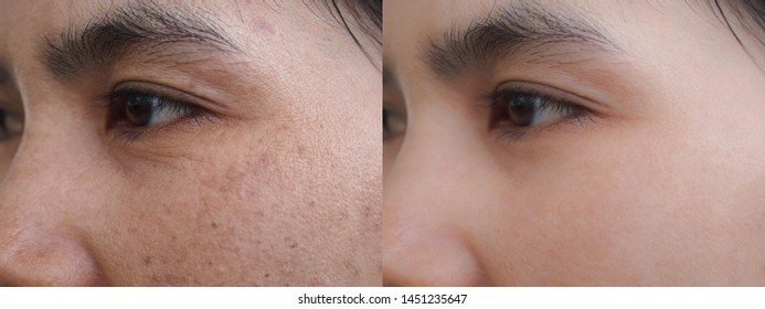Image before and after melasma spot scar acne and dark pigmentation skin facial treatment on face asian woman. Problem skincare and health concept.