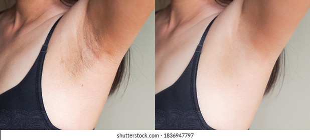 Image before and after skincare cosmetology armpits epilation treatment concept. Problem underarm chicken skin, Fox Fordyce, black armpit in woman.