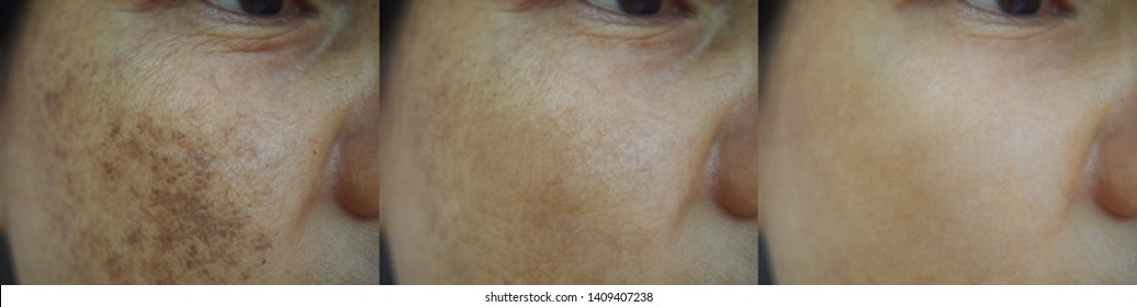Image before and after spot melasma pigmentation treatment on skin face asian women compare in 3 periods. Skincare and health concept.
