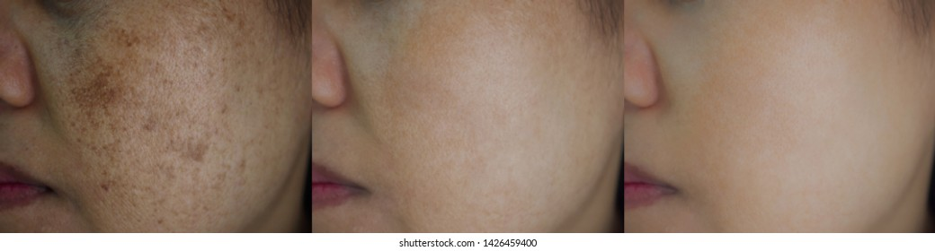 Image before and after spot melasma pigmentation treatment on skin face asian woman compare in 3 weeks. Skincare and health concept.