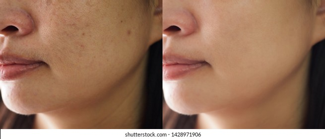 Image before and after spot melasma pigmentation facial treatment on skin face asian woman. Problem skincare and health concept.