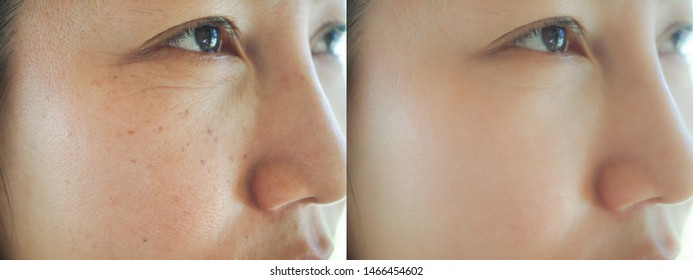 Image before and after spot melasma pigmentation skin facial treatment on face asian woman. Problem skincare and beauty concept.