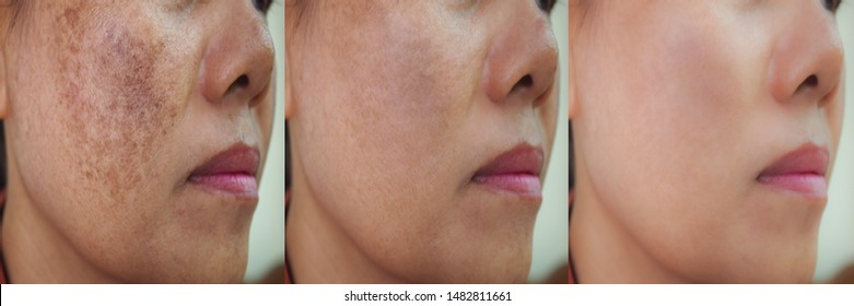 Image before and after spot melasma pigmentation treatment on skin face asian woman compare in 3 periods. skincare and health concept.