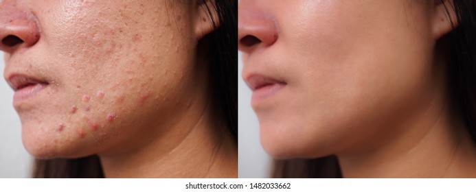 Image before and after spot red scar acne pimples treatment on face asian woman. Problem skincare and beauty concept.
