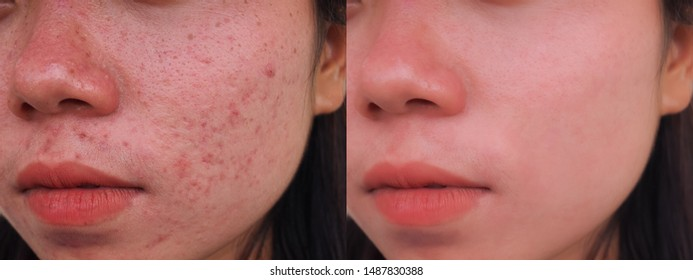 Image before and after spot red scar acne pimple treatment on the face of young Asian woman. Problem skincare and beauty concept.
