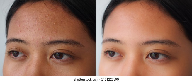 Image before and after spot scar acne treatment on the skin face of young Asian women. Problem skincare and beauty concept.