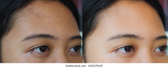 Image before and after spot scar acne treatment on the face of young Asian woman. Problem skincare and beauty concept.