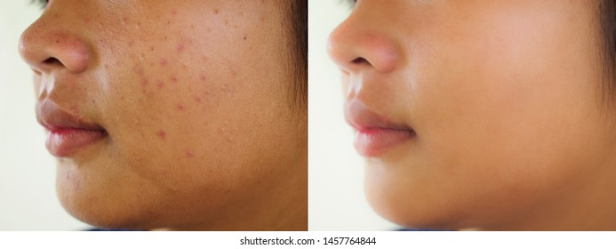 Image before and after spot scar acne treatment skin on the face of young Asian woman. Problem skincare and beauty concept.