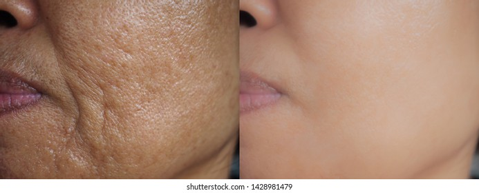 Image before and after treatment rejuvenation surgery on face Asian woman concept. Closeup wrinkles dark spots pigmentation on senior female.