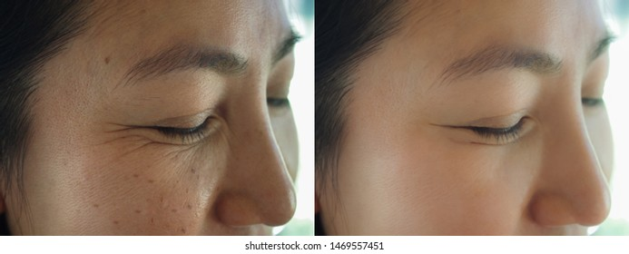 Image before and after treatment rejuvenation surgery on face asian woman concept. Closeup wrinkles dark spots freckles pigmentation skin on facial of female.