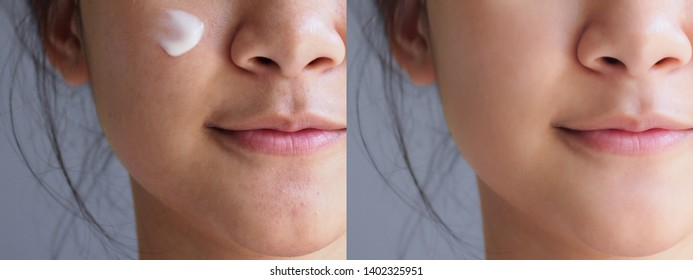 The image before and after using the cosmetic  cream treatment on facial skin of asian young woman compare in 2 periods.