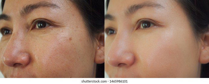 Image before and after wrinkles spot melasma pigmentation skin rejuvenation facial treatment on face asian woman. Problem skincare and beauty concept.