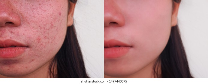 Image before and spot red scar acne pimple treatment on the face of young Asian woman with copy space. Problem skincare and beauty concept.