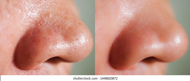 Image closeup before and after treatment small pimples acne blackheads on skin of nose and spot melasma pigmentation on facial Asian woman. Problem skincare and health concept.