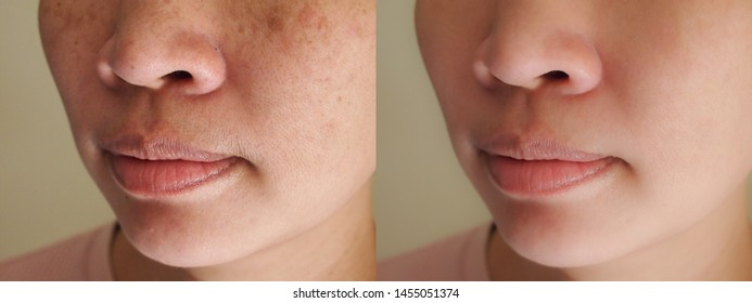 Image closeup before and after treatment small pimple acne blackheads on skin of nose and dark spots melasma pigmentation on facial Asian woman. Problem skincare and health concept.