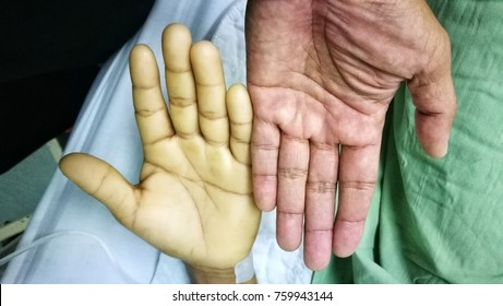 Image of hands comparing Severe Anaemia and Normal hand. Note the different in skin color. Anaemia is due to severe blood loss.