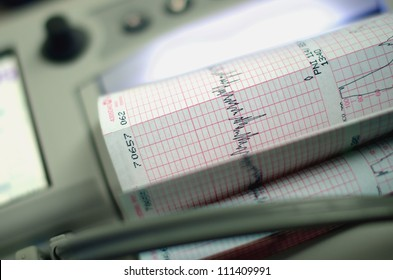 Image of a heart beat monitoring equipment with graph