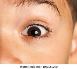 image of a little boy eye open