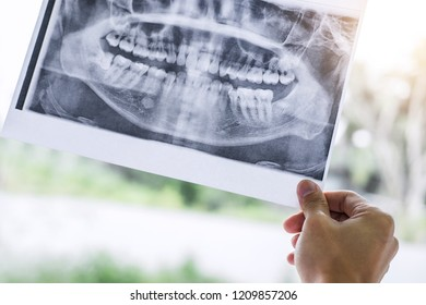 Image of male doctor or dentist holding and looking at dental x-ray.