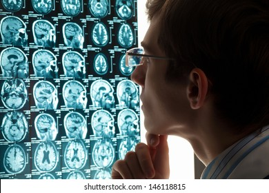 Image of male doctor looking at x-ray results
