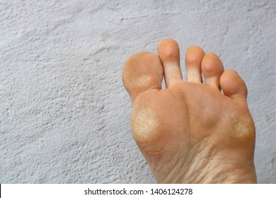 Image for medical purposes. Dry skin, plantar callosity and flakes on the female feet sole close up. Copy space
