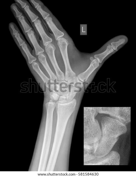 súlyos fájdalom a bal kéz ízületeiben